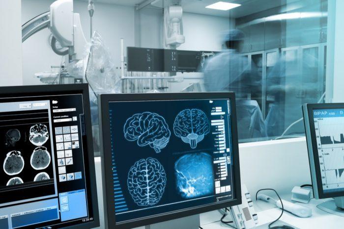 astrocytes, brain tumors, cannabis, CBD indica, medical cannabis, Phil James, UK, legalization, prohibition, medical cannabis, cannabis oil, THC, CBD